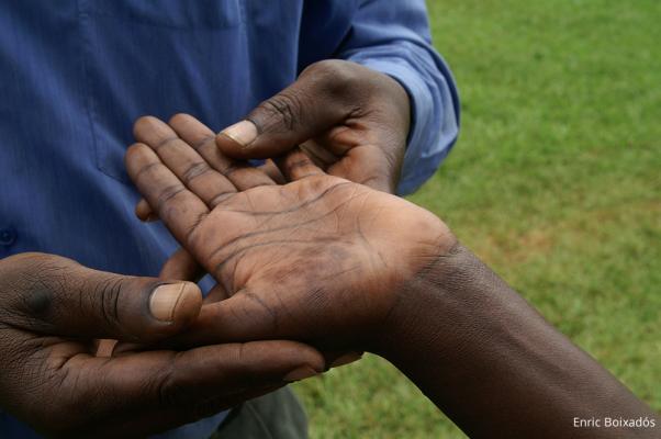 Ein erstes Zeichen für Lepra sind helle Helle hautstellen und Gefühllosigkeit / DAHW